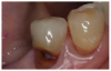 "Figure 1: Root Caries<br>Courtesy of <a href-""http://dentalcare.com"" target=""_blank"">dentalcare.com</a>"