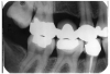 Figure 1 - Defective Restoration; Abutment Tooth #4