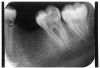 Figure 3 - Dentin Caries