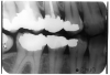 Figure 4 - Recurrent Caries