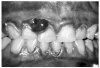 Figure 9 - Gingival Hyperplasia