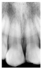 Figure 21 - Fractured Incisal Edges