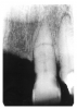 Figure 22 - Fractured Root
