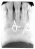Figure 25 - Callus at Healed Fracture Site