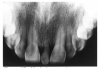 Figure 27 - Mesioden seen in radiographic image