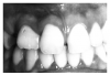 Figure 29 - Maxillary Right Lateral Incisor Macrodont