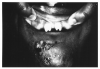 Figure 32 - Hutchinson's Teeth