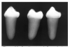 Figure 44 - Dentinogenesis Imperfecta