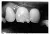 Figure 48 - Turner's Tooth