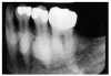 Figure 59 – Radiographic image of Mandibular Tori