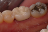Fig 3. Porcelain fused to metal crown. Courtesy of Dentalcare.com.