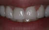 Fig 4. Veneers. Courtesy of Dentalcare.com.