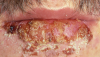 Figure 2. Herpes, lips (courtesy of dentalcare.com)