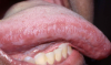 Figure 4. Hairy Leukoplakia, lateral border of tongue (courtesy of dentalcare.com)