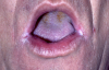 Figure 7. Angular cheilitis (courtesy of dentalcare.com)