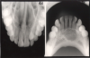 Figure 3 - Occlusal Images
