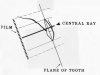 Figure 15 - Maxillary Central/Lateral Incisors