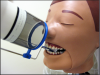 Figure 16 - XCP placement for Maxillary Central/Lateral Incisors