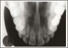 Figure 64 - Maxillary Topographical Occlusal Image
