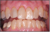 Figure 4 – Examples of gingival recession; exposed root surfaces are susceptible to dentinal hypersensitivity. Image courtesy of Jeffrey C. Hoos, DMD
