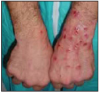 Figure 2 – Vasoconstriction and subsequent itching - Photo courtesy of Sheriff's Department, Multnomah County, Oregon; United States Department of Justice, Meth Awareness Program
