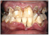Figure 6 – Rampant Caries - Photo with permission from Clinton Substance Abuse Council
