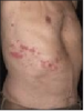 Figure 6 – Herpes Zoster lesions