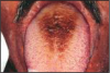 Figure 1 – Hairy Tongue (Black) Used with Permission, www.docspiller.com24