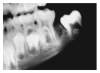 Fig 5. Mixed Dentition. Image courtesy of Lippincott, Williams & Wilkins. 2003.