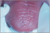 Figure 1 – Dry mouth associated with Sjögren's syndrome. The tongue is dry and pale and has lost papillation of the surface.